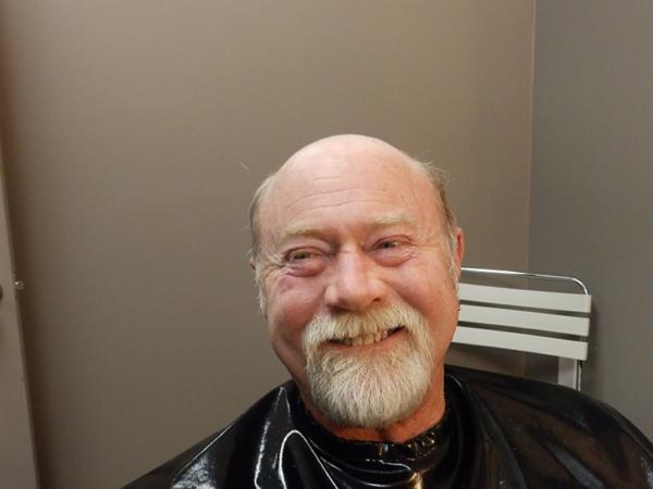 Headline Studio Before Men's Hair Replacement