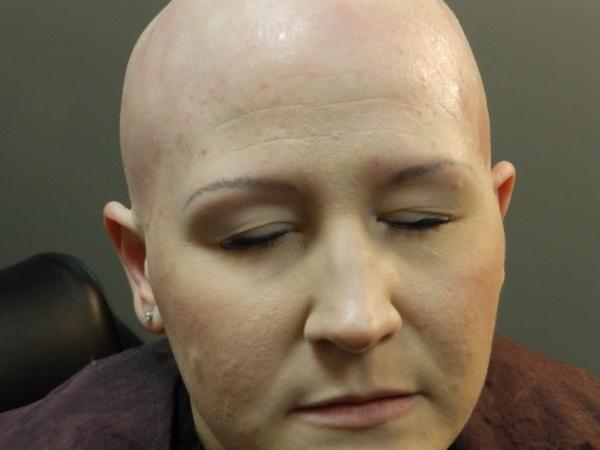 Headline Studio Before Women's Hair Replacement